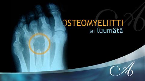 Osteomyeliitti