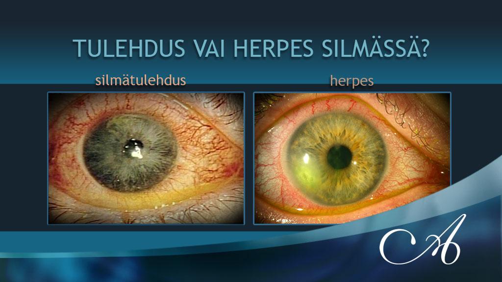Herpes Silmä