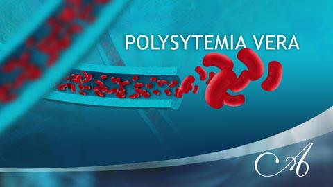 Polysytemia Vera
