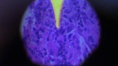 Tuberkuloosi Rokote