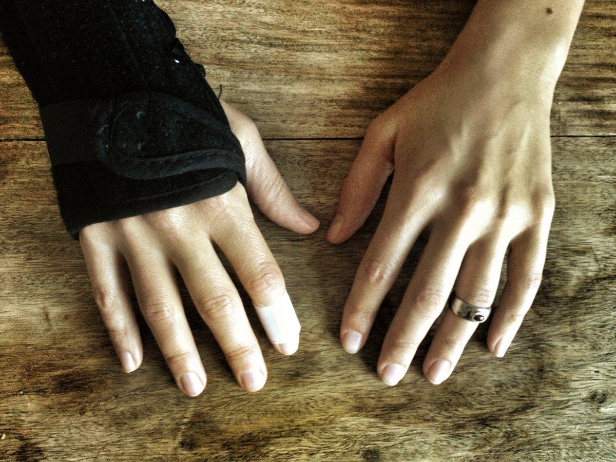 Vasen Käsi Kipeä